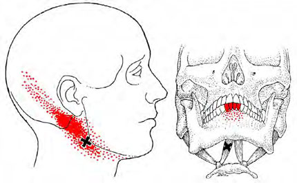 Anterior Digastric - Trigger Point Map