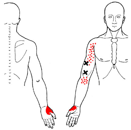 Brachioradialis - Trigger Point Map