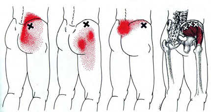 Gluteus Medius - Trigger Point Map