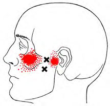 Lateral Pterygoids - Trigger Point Map