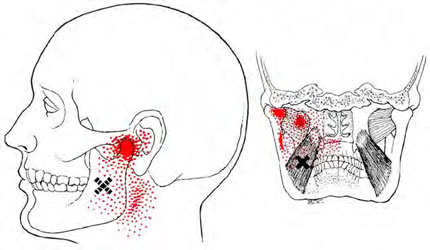 Medial Ptrygoid - Trigger Point Map
