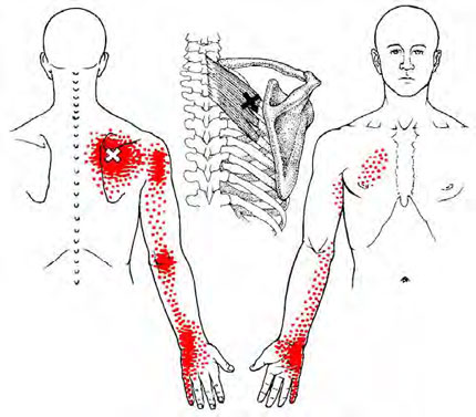 Rhomboids - Trigger Point Map