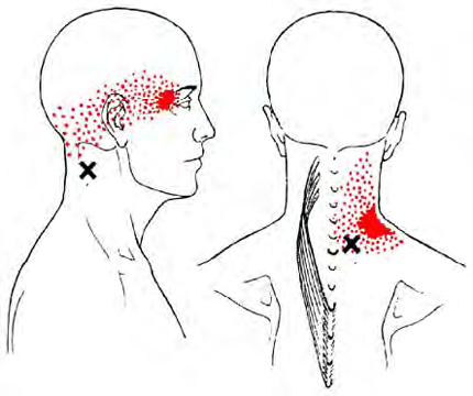 Splenius Cervicis - Trigger Point Map