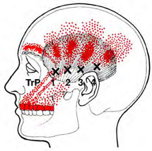 Temporalis - Trigger Point Map