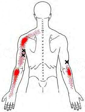 Triceps - Trigger Point Map